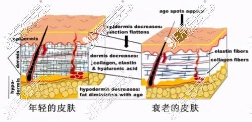 抗衰要看皮肤状态不能看年龄