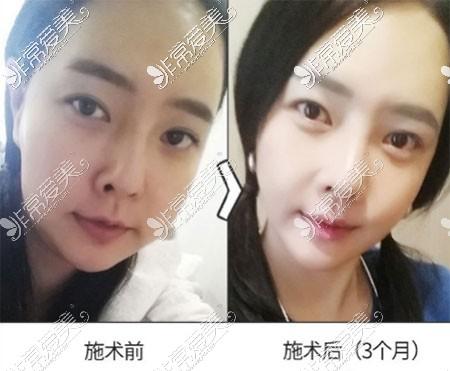 韩国原辰整形去除皱纹前后对比图