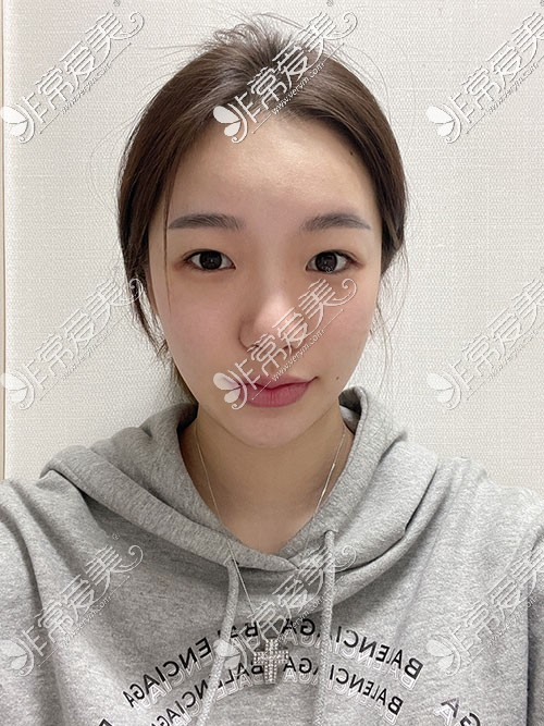 韩国优雅人隆鼻照片
