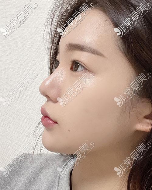 韩国优雅人整形隆鼻效果图片
