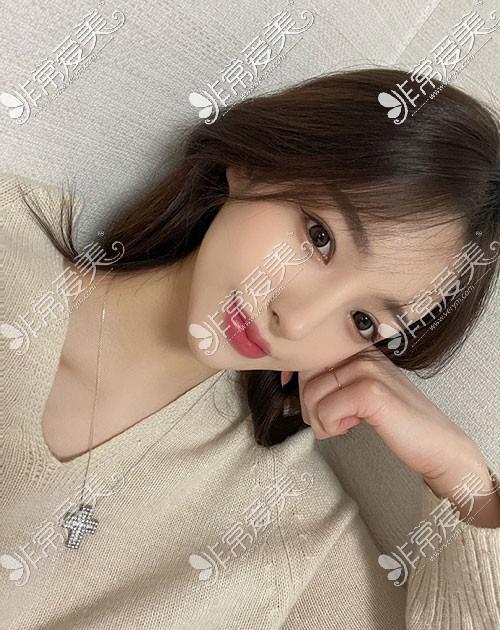 韩国优雅人整形隆鼻效果