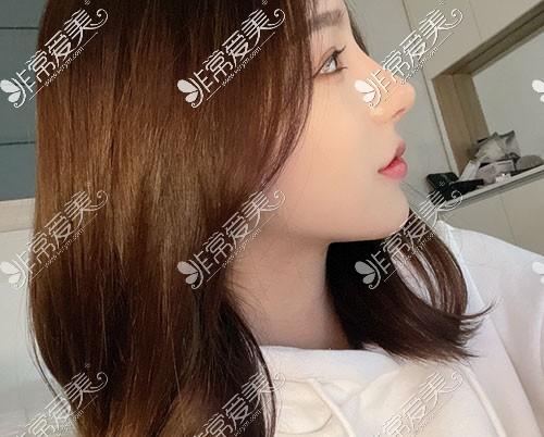 做鼻子恢复过程图片