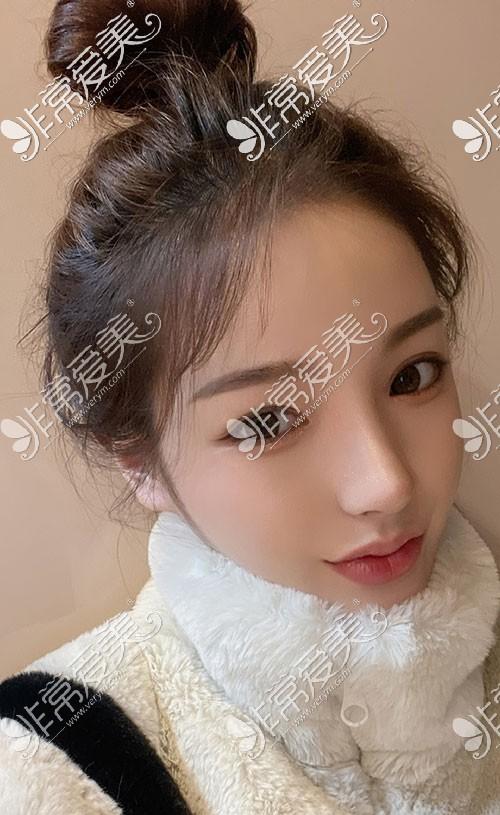 韩国优雅人医院隆鼻效果怎么样