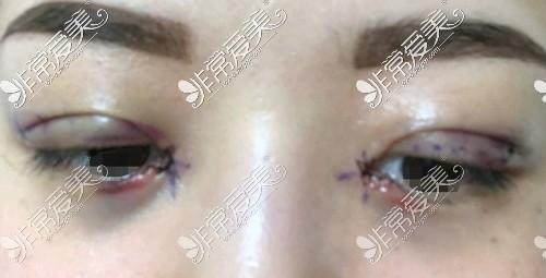 双眼皮开眼角后眼睛肿胀程度