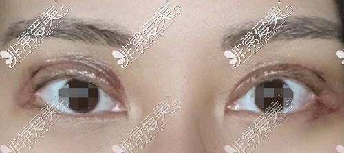 双眼皮手术后肿胀较重的情况