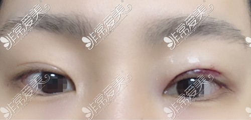 双眼皮术后肿胀很轻的情况