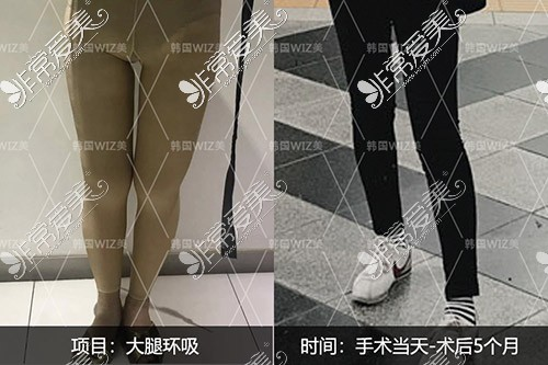 韩国wiz美吸脂医院大腿吸脂前后对比