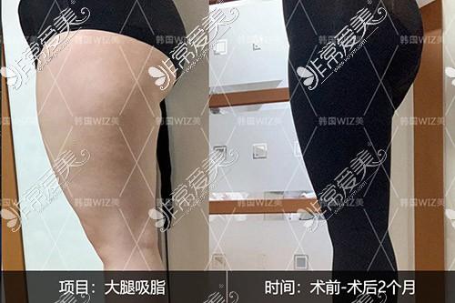 韩国wiz美大腿吸脂侧面图片