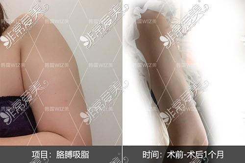 韩国wiz美整形外科吸脂照