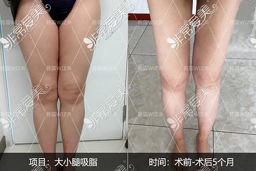 大腿吸脂照片