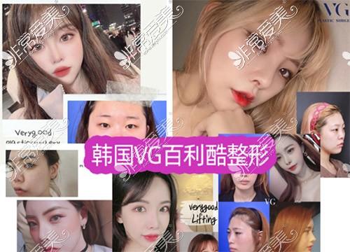 韩国VG百利酷整形隆鼻照片