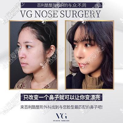 韩国VG百利酷隆鼻照片