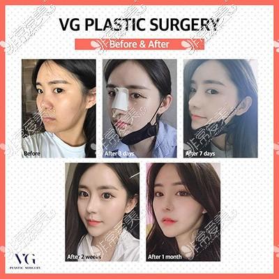 韩国隆鼻恢复图片
