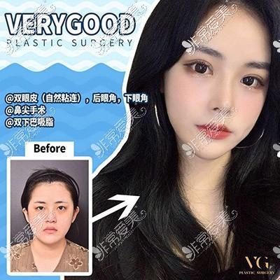 韩国隆鼻效果图片