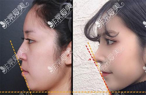 韩国VG百利酷鼻尖整形照片