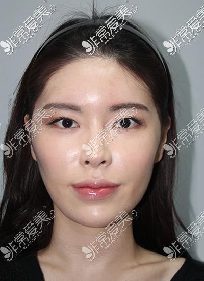 韩国现代美学轮廓改善术前