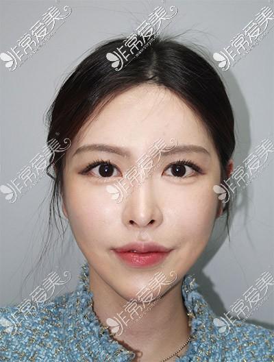 韩国现代美学轮廓改善术后效果