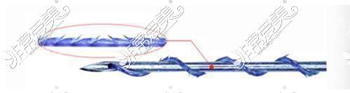 面部埋线线体展示
