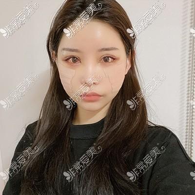 韩国眼综合整形3天照片
