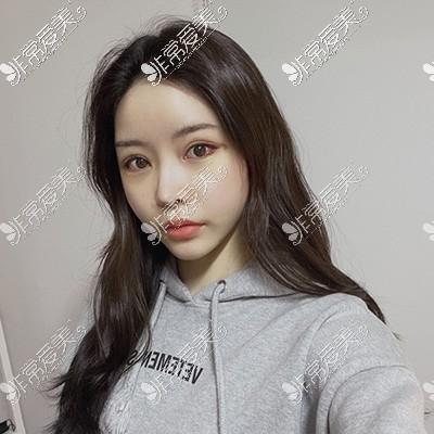韩国眼综合整形7天照片