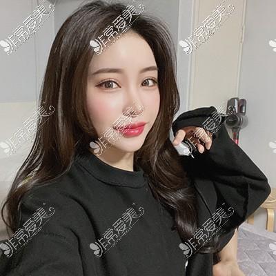 韩国现代美学整形眼综合20天