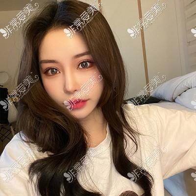 韩国现代美学整形眼综合30天