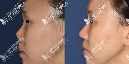 韩国4月31日整形医院挛缩鼻修复对比图