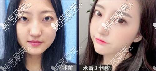 韩国NANA整形医院眼底脂肪重置效果图