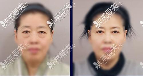 韩国NANA整形医院中年眼整形效果图
