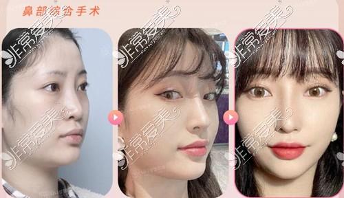 韩国NANA医院鼻综合效果图