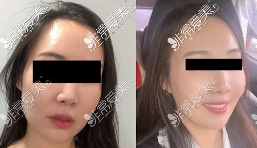 注射瘦脸针前后对比效果