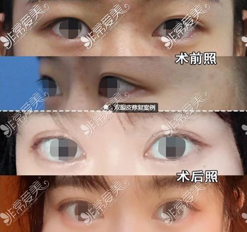 杭州格莱美张霞飞院长双眼皮修复效果