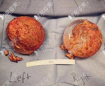 隆胸包膜挛缩照片