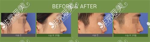 韩国梦想整形的鼻整形对比