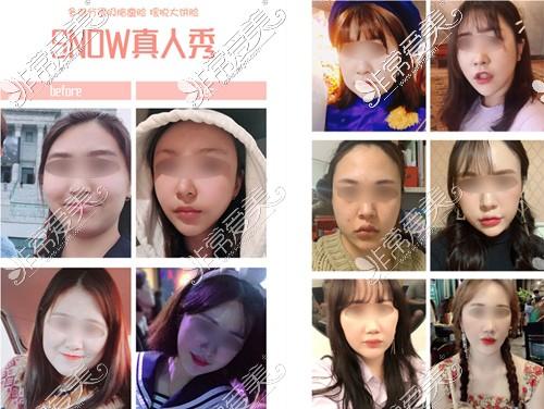 韩国SNOW整形外科全面部吸脂前后对比图