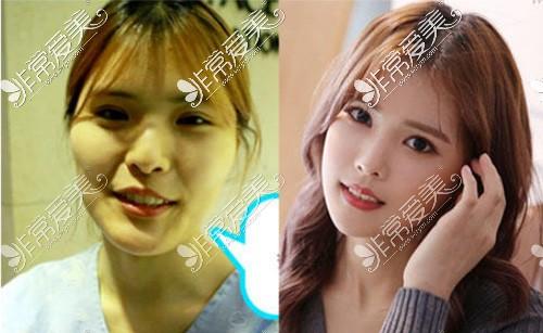 面部轮廓手术前后对比