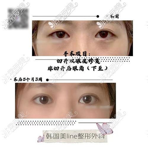 韩国美line整形医院双眼皮失败修复