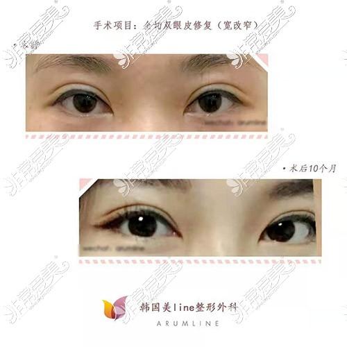 韩国美line整形医院双眼皮失败修复照片