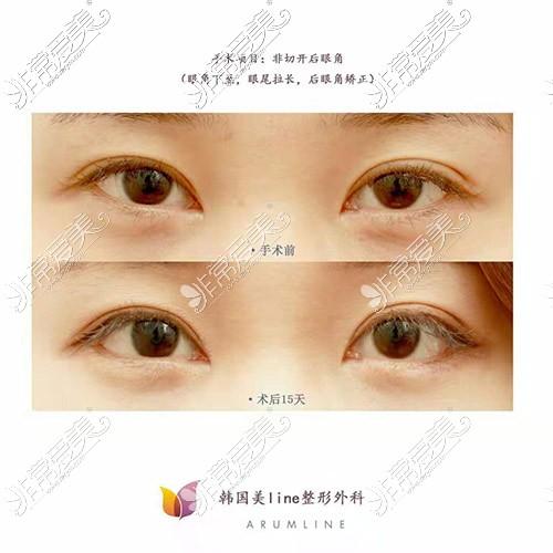 韩国美line整形医院开眼角手术
