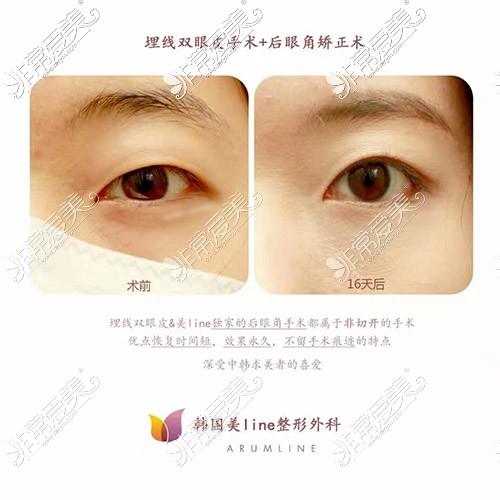 眼角下至手术前后对比图
