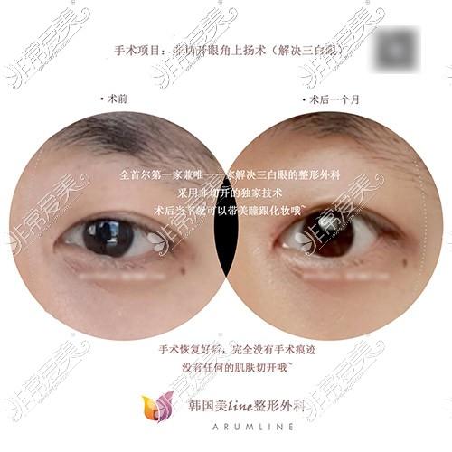 眼角上扬手术前后对比图