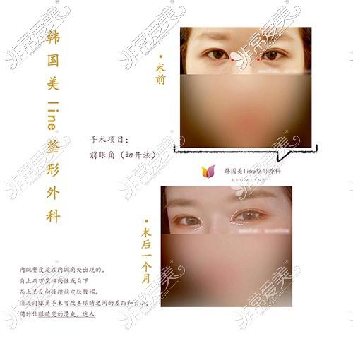 开前眼角手术前后对比图