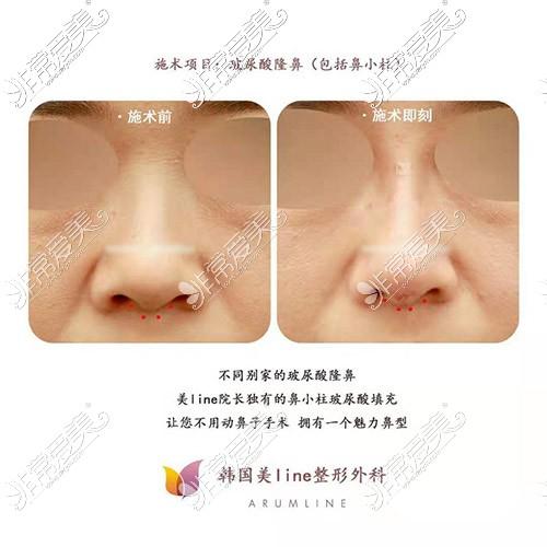 玻尿酸注射隆鼻前后对比图
