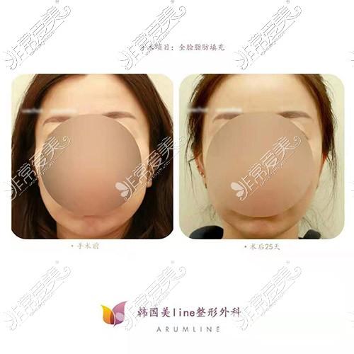 韩国美line面部脂肪移植照片