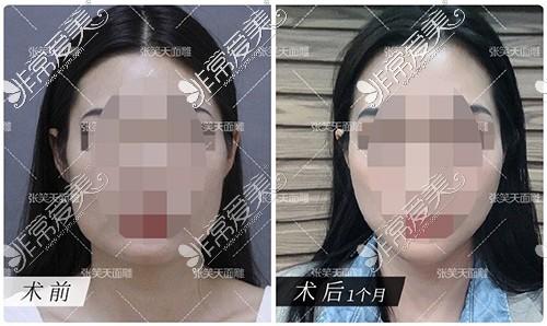 北京圣嘉新医疗美容医院张笑天医生下颌角手术效果
