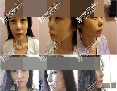 韩国4月31日整形外科隆鼻