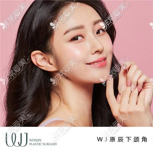 韩国WJ原辰整形外科下颌角效果