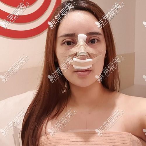 韩国tj整形眼鼻手术恢复图