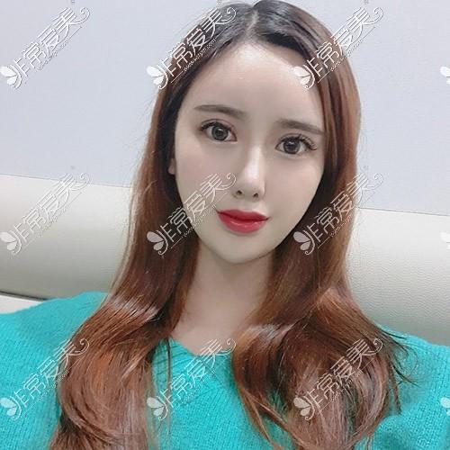 韩国TJ整形双眼皮效果