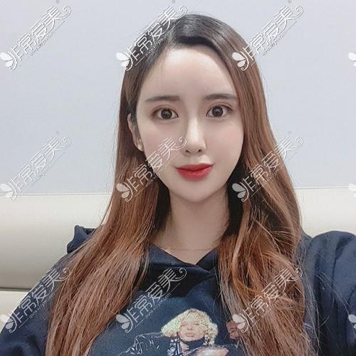 韩国TJ整形隆鼻效果图